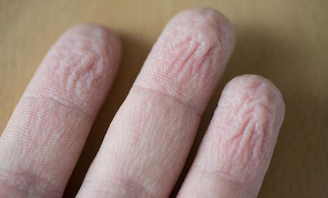 schrumpelige Finger