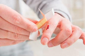 offene Wunde am Finger